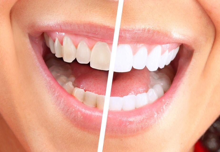 How To Whiten Your Teeth Fast Beauty Trusper Tip Beauty