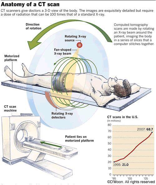Ct Scan Medical Radiation Technologist Radiology Diagnostic Imaging