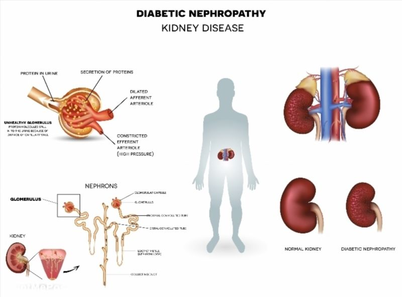 Diabetic Nephropathy Kidney Disease Poster Diabetic Nephropathy