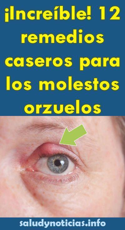 remedio hostile orzuelos linear unit los ojos