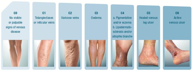 enfermedad venosa clasificacion
