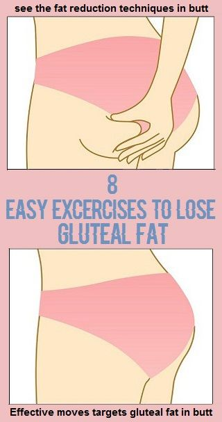 How to lose gluteal and thigh fat