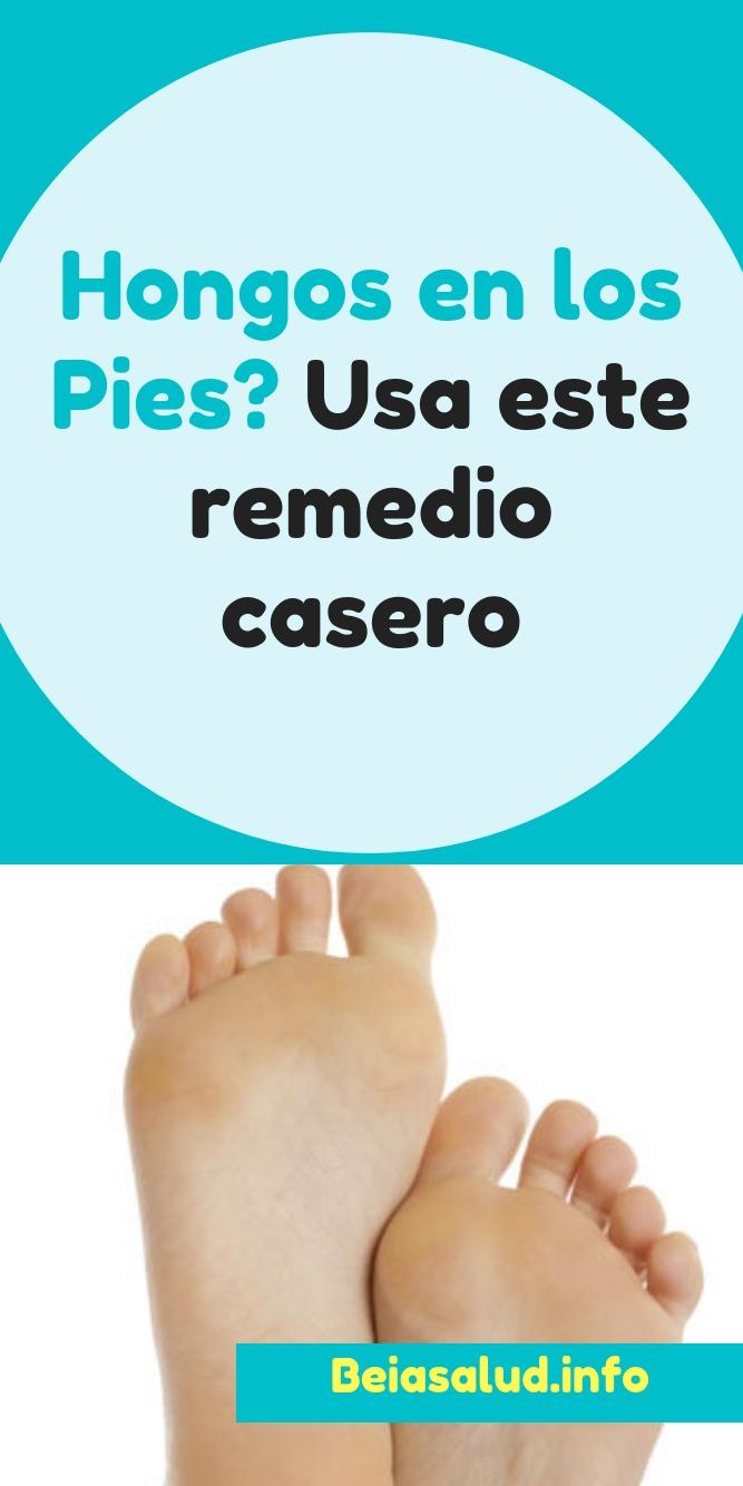 Hongos En Los Pies Usa Este Remedio Casero Beia Salud Salud Remedios Consejos Tips Remedioscaseros Remediosnaturales Saludable Saludyb Pie Chart Tips