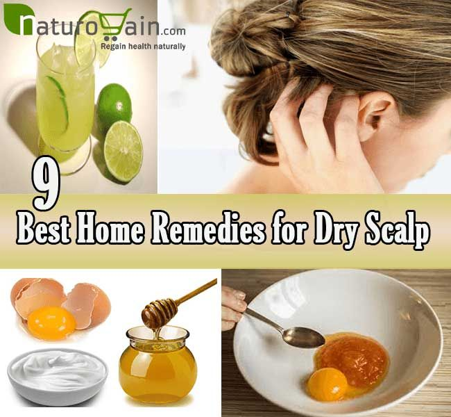 Home remedies for dry scalp are the best ways to keep scalp moist and free of debris and dead cells to maintain healthy hair naturally.