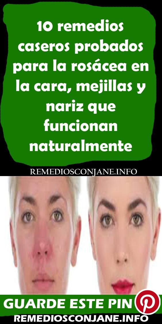 10 Remedios Caseros Probados Para La Rosácea En La Cara Mejillas Y Nariz Que Funcionan Naturalmente Remedios Rosácea Remedios Caseros