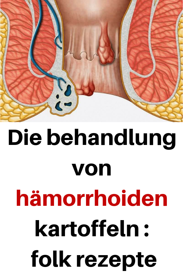 a43028b16591ef34e609ce665666ac52 - Ernã Hrungsdocs Rezepte Arthrose