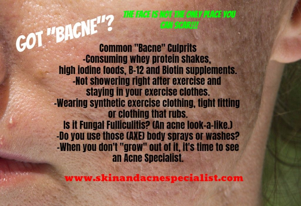 Cosdna Ingredient checker! (With images) Bacne, Acne