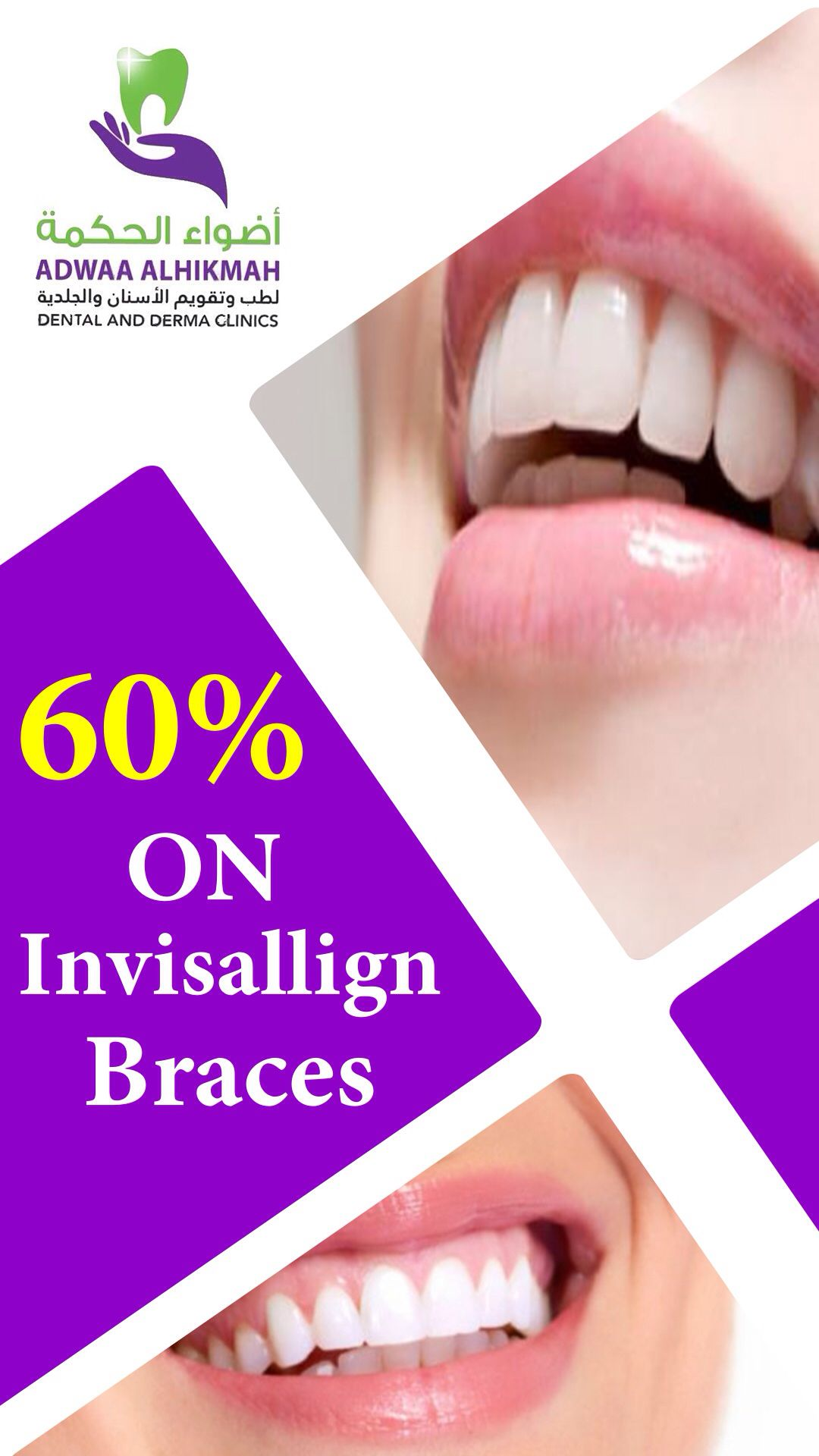 خصم ٦٠ Engagement Dental Engagement Rings