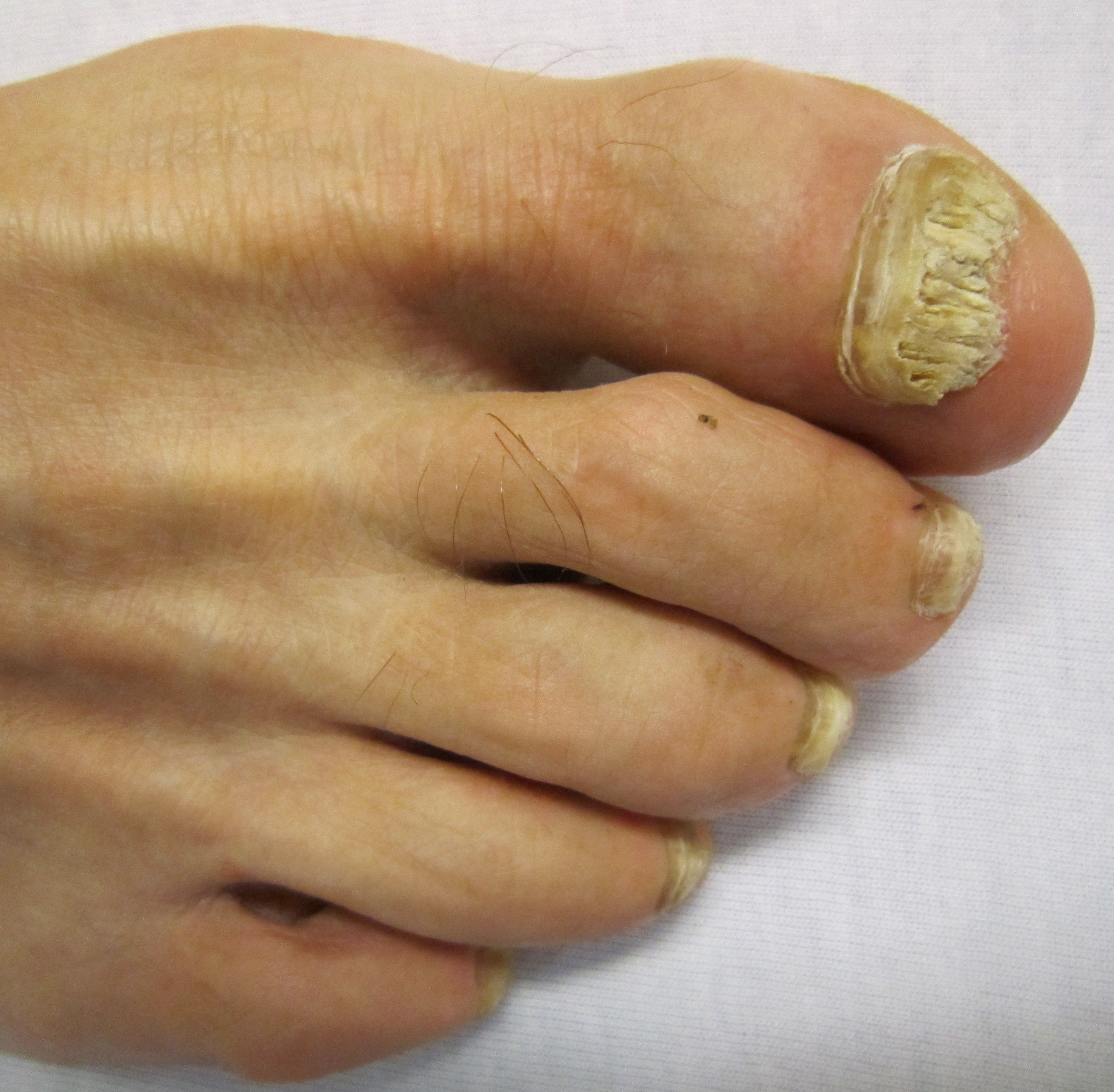 Yellow Toenails: Causes, Symptoms, Treatment and Prevention ...