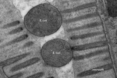 Introduction To Electron Microscopy Advanced Microscopy Imaging Facilities The University Of Utahe Coli In Gut Microscopy Electrons Cymatics