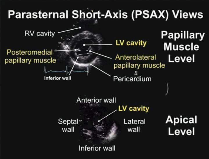 Parasternal Short Axis View TEE | Cardiac surgery | Pinterest ...