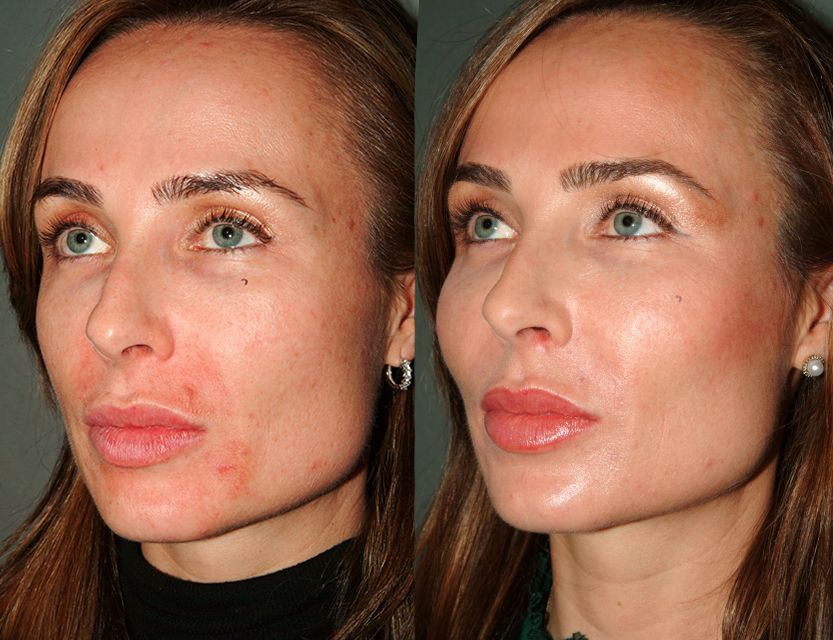 Before & 3 Days After - Age 40 Y LIFT® - Accentuated the