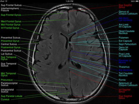 Normal brain mri neuro pinterest brain normal brain mri ccuart Images