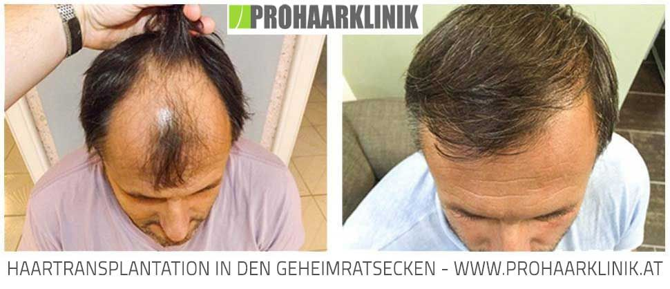 Haartransplantation kosten in deutschland
