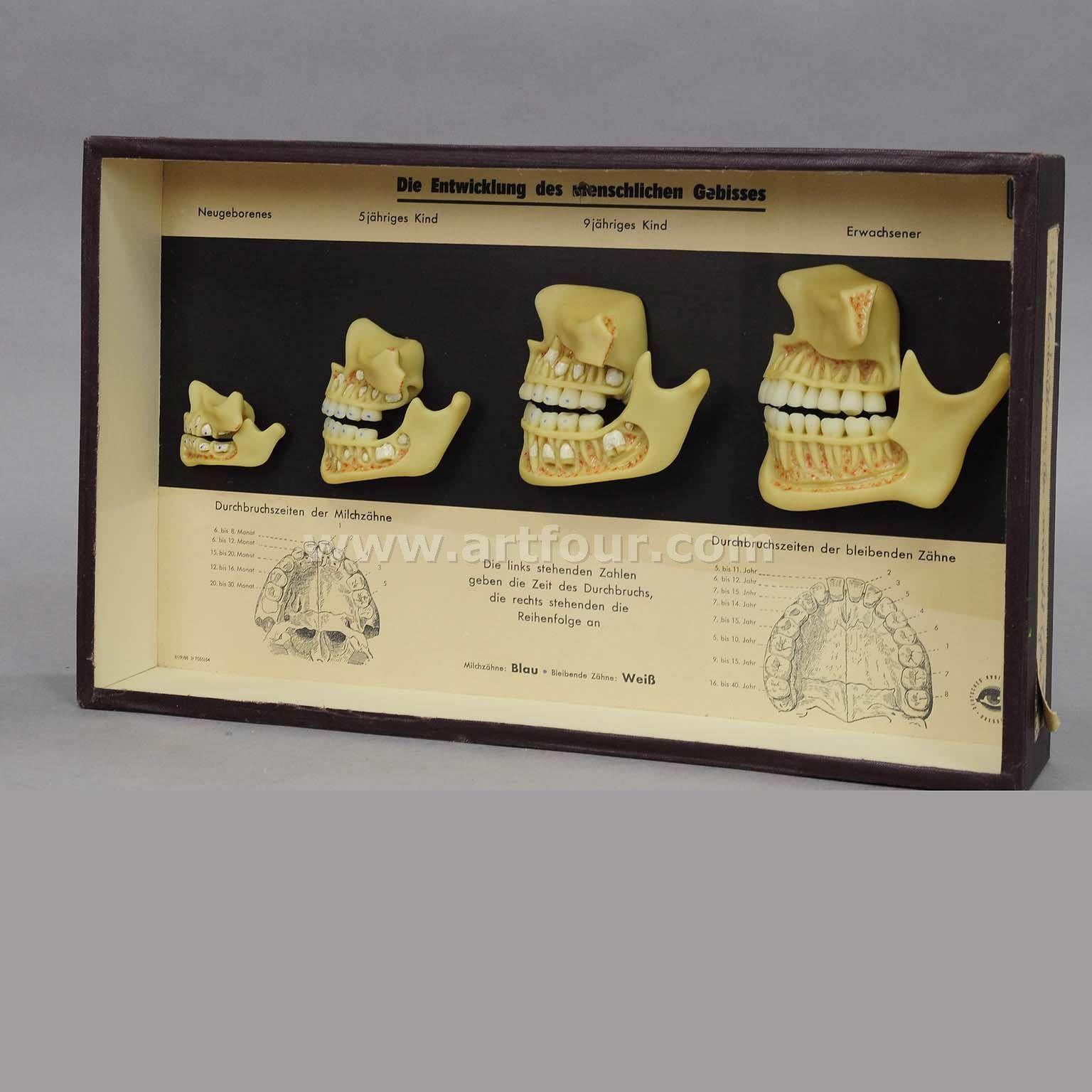 Decorative Arts Wax Specimen Showcase Human Bite Development High Quality Materials