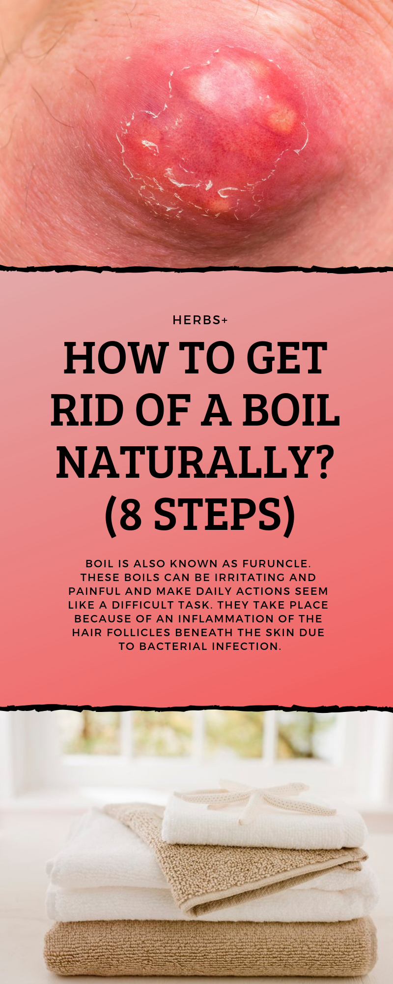 How To Get Rid Of A Boil Naturally 8 Steps Herbal Cure Cold Home Remedies Boil Remedies
