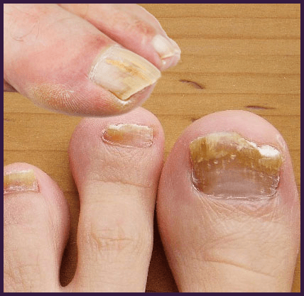 3 Top Ways To Remove Callus Thick Skin Under Toenail Effectively Toe Nails Brittle Toenails Callus Removal