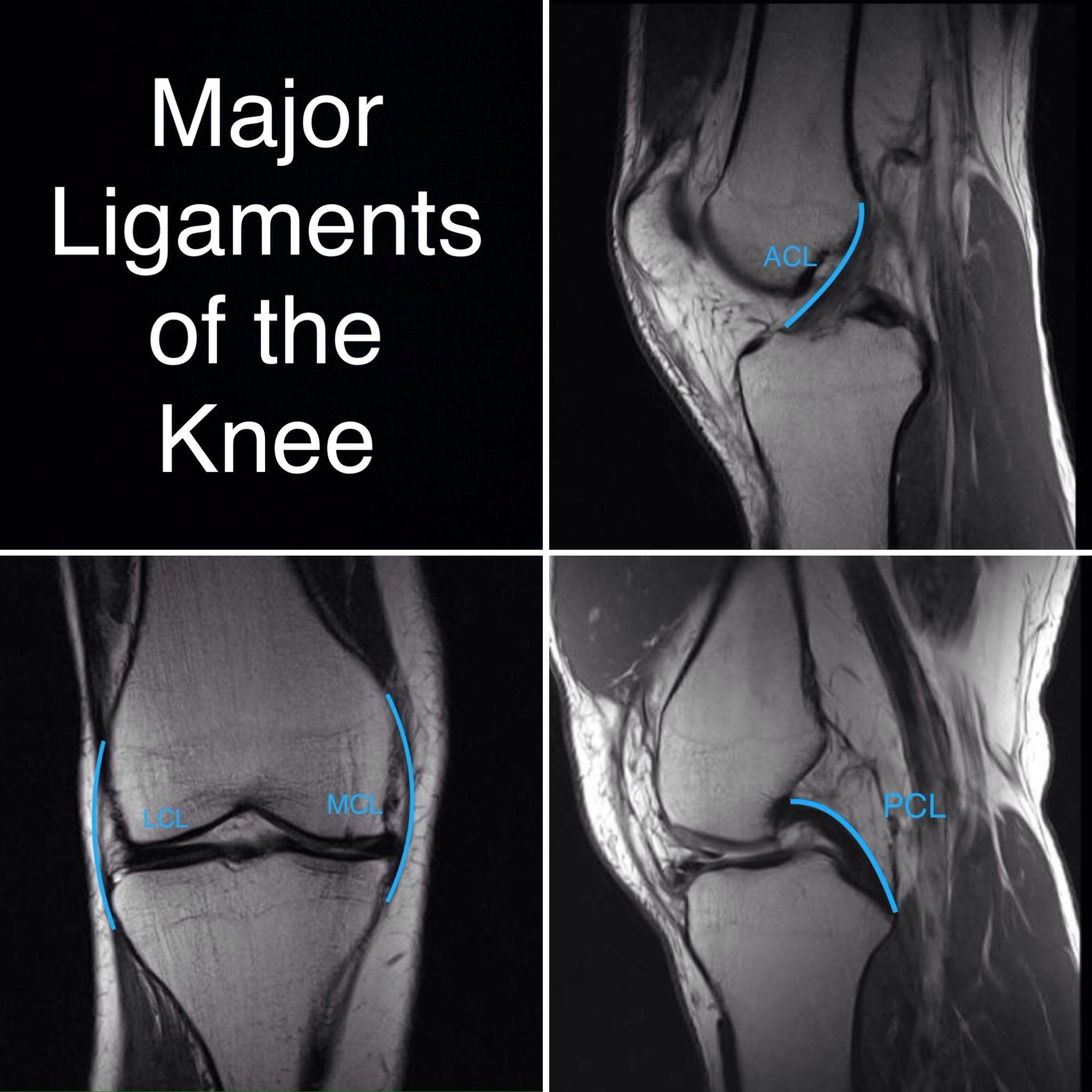Normal knee ligaments. Anterior cruciate ACL, posterior cruciate PCL ...