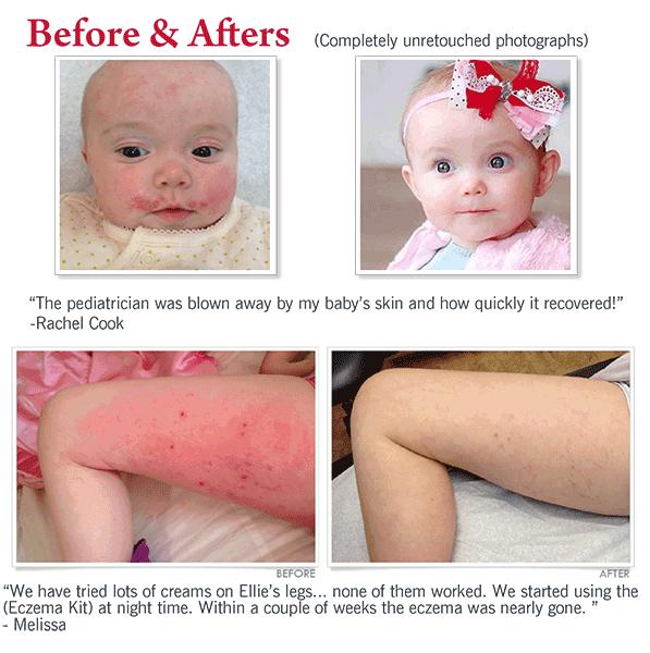 Ultimate Eczema Kit In 2020 Baby Eczema Treatment Barrier Cream