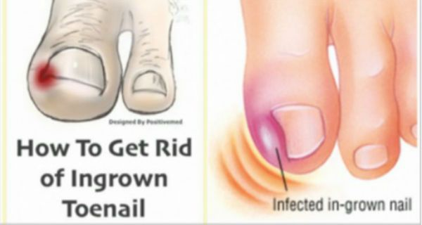 best remedies for gout pain alternative medicine gout definition level of uric acid in human body