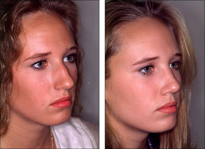 """Nose Reshaping (Rhinoplasty) or a """"Nose Job"""" is concerned"""