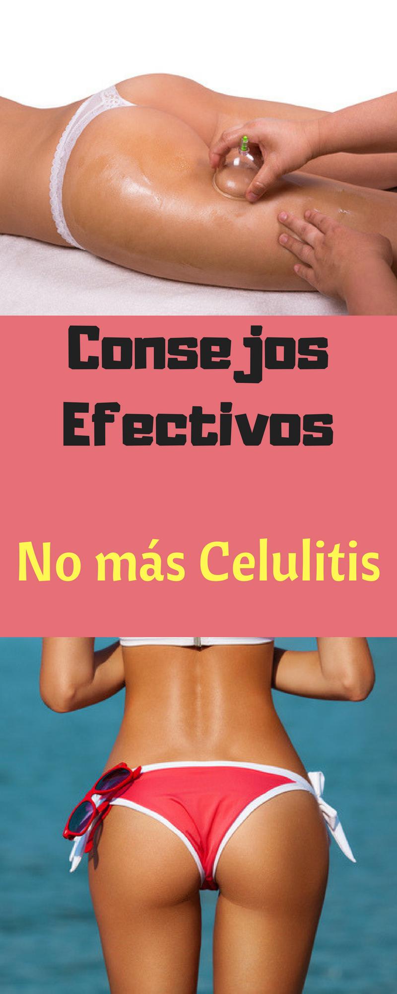 quitar celulitis en casa