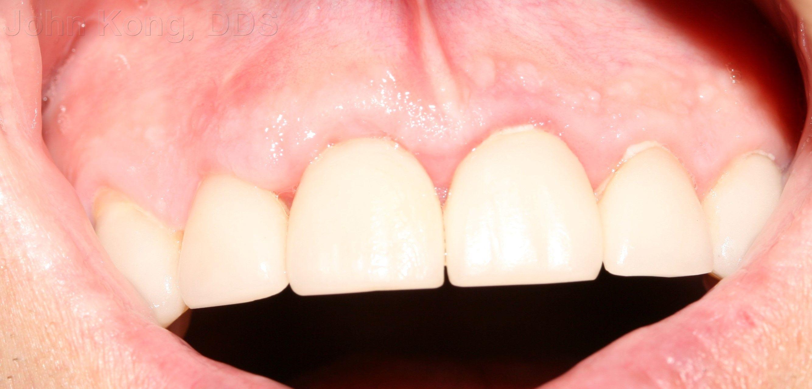 Root Coverage 8 Gum Grafts Dental implants, Gum graft