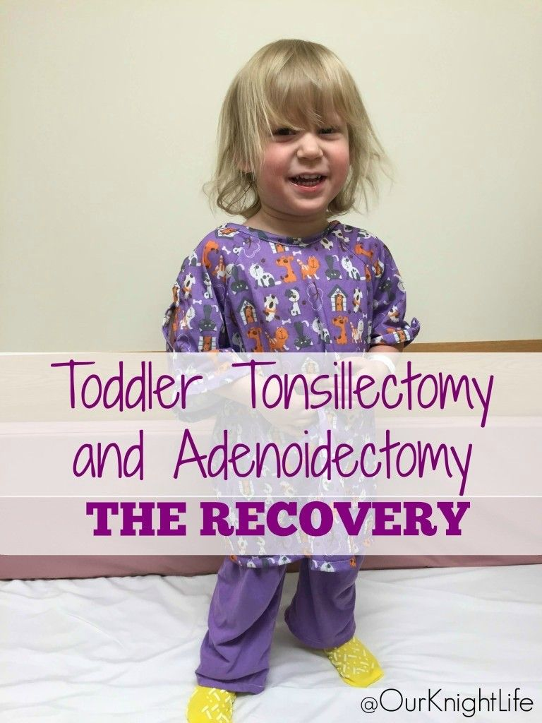 toddler tonsillectomy and adenoidectomy recovery