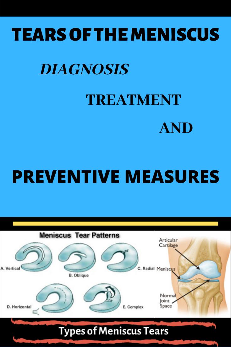 The meniscus Meniscus tear, Preventive measure, Diagnosis