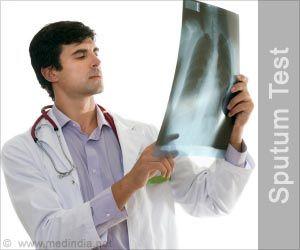 sputum test acute and chronic bronchitis