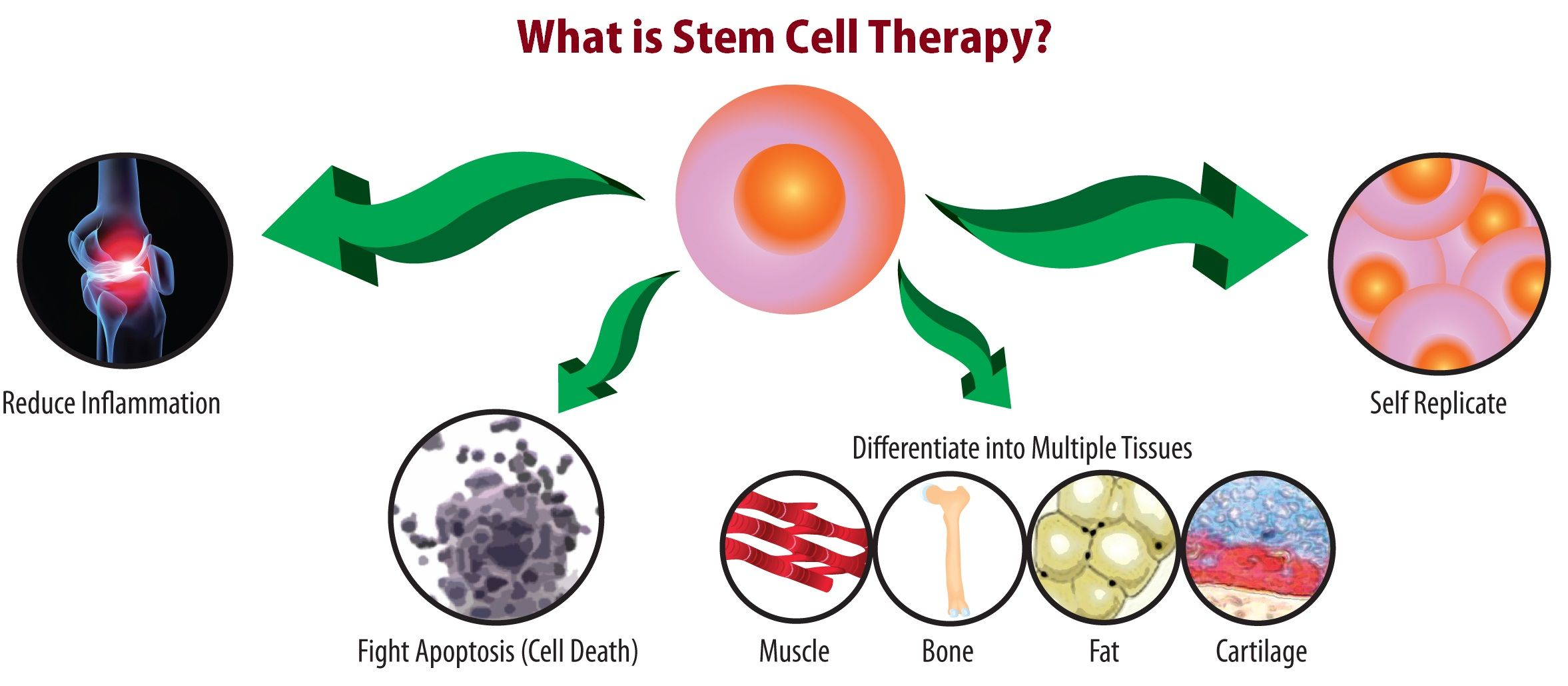 Stem Cell Therapy in India Is Cost Effective Treatment