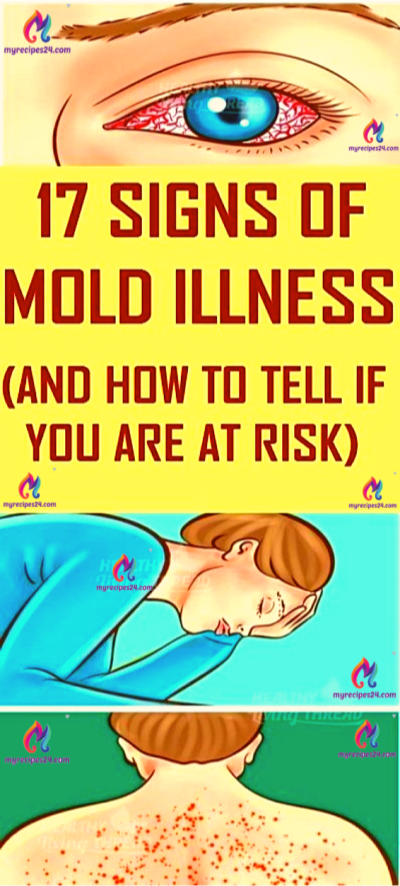 17 Signs Of Mold Illness: What It Is and How You Know if You…