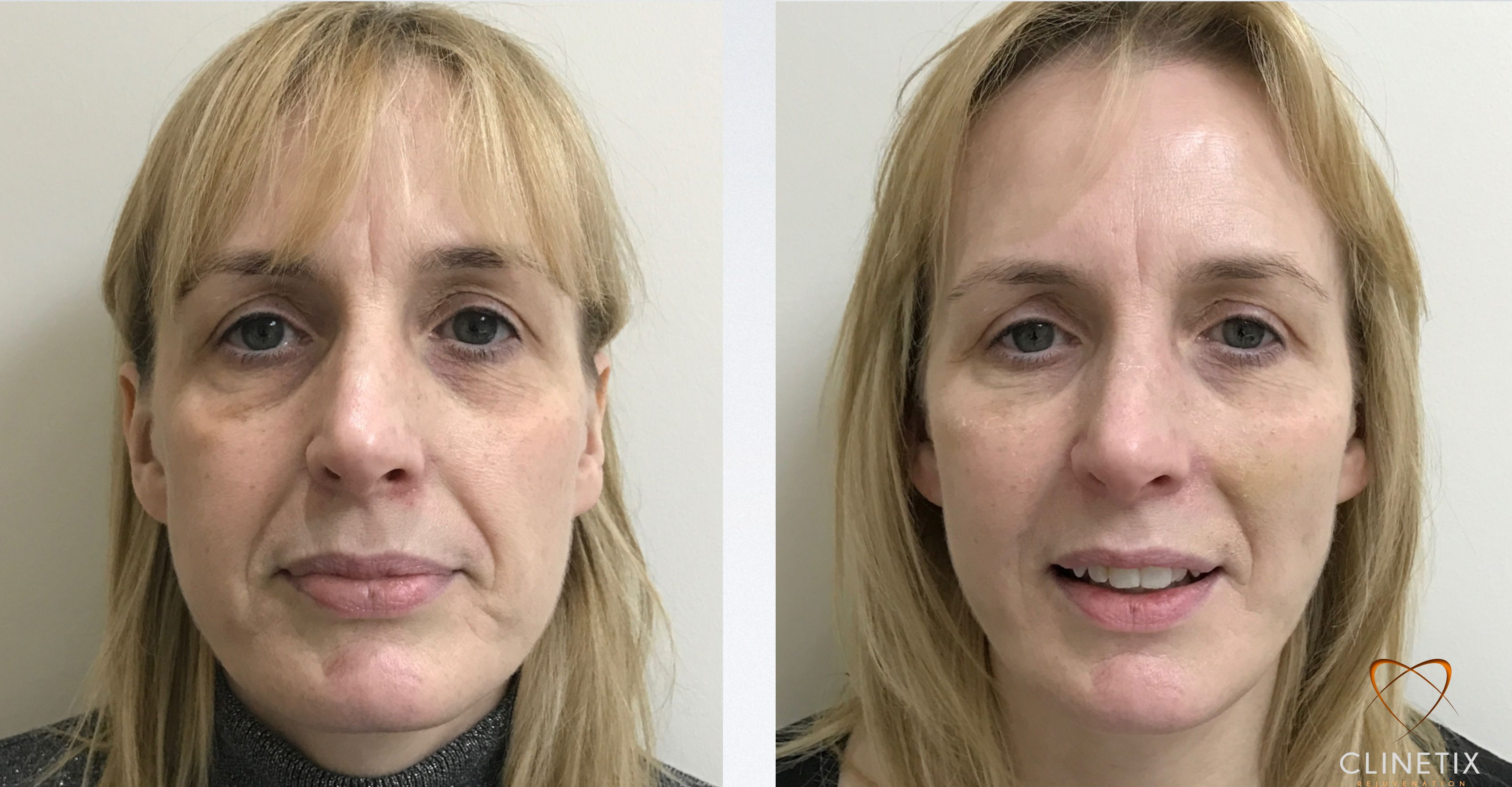 Before & after results achieved with the Clinetix Volume Replacement