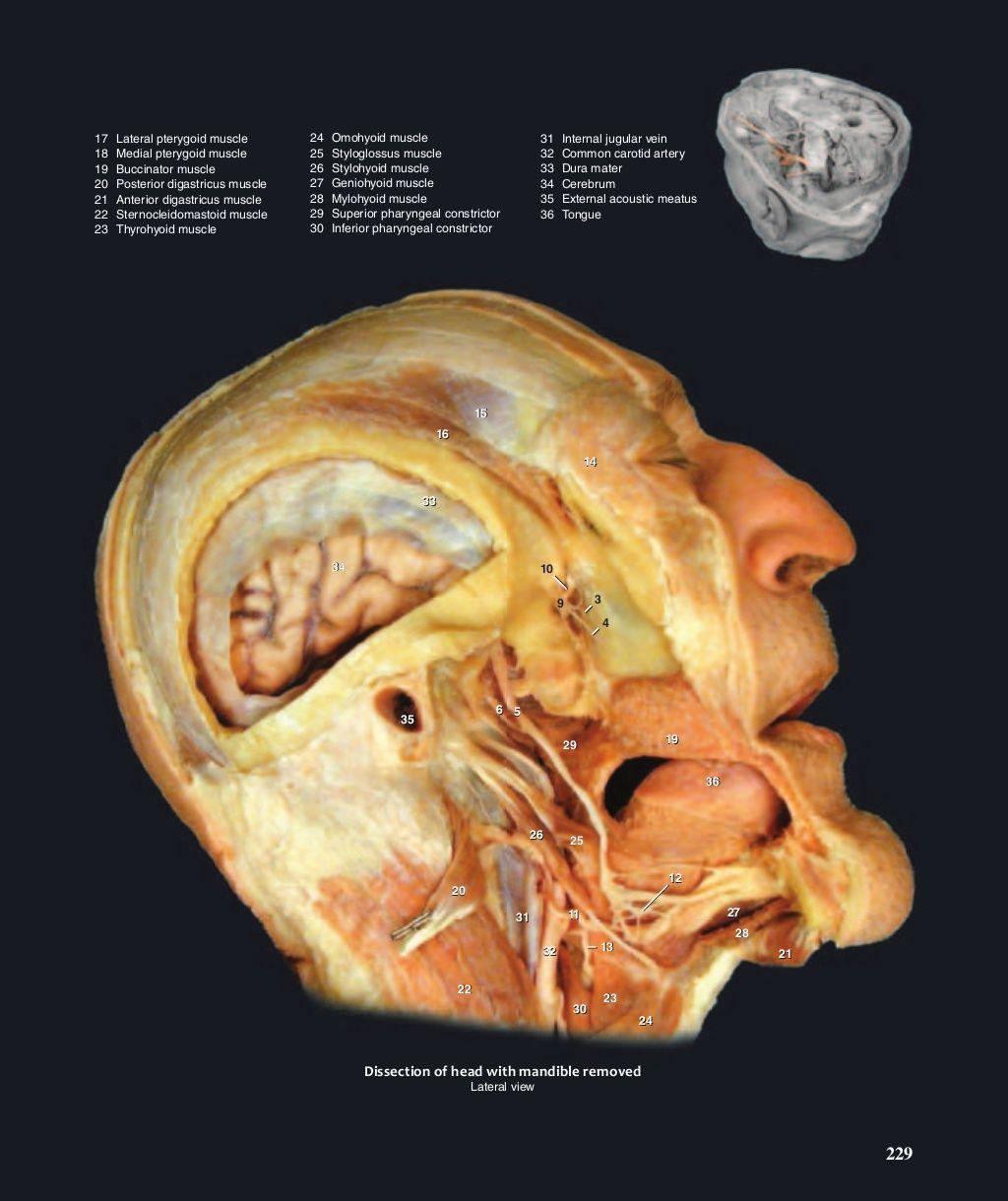 Großartig Löcher Menschliche Anatomie Und Physiologie 14.e Ausgabe ...
