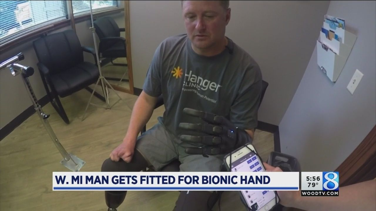 W. MI man among first in US to be fitted for bionic hand