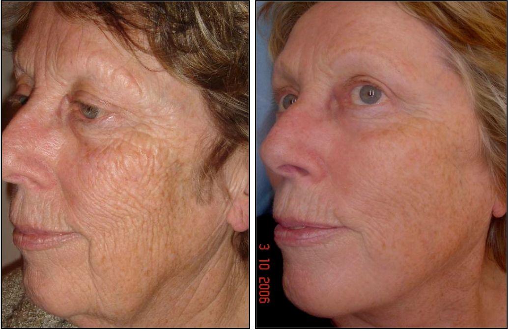 Image Result For Fraxel Laser For Wrinkles Before And After Laser Skin Resurfacing Laser Skin Skin Resurfacing