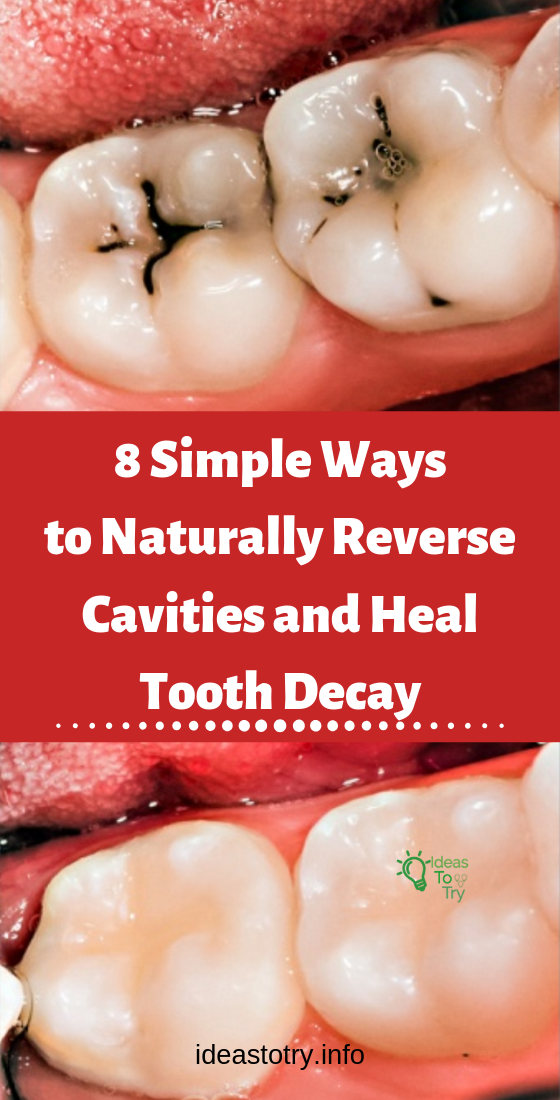 8 Simple Ways To Naturally Reverse Cavities And Heal Tooth Decay Reverse Cavities Cavities Tooth Decay