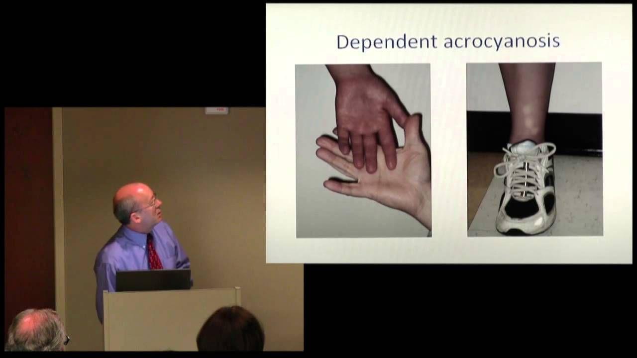 "Prof. Peter Rowe - ""Dysautonomia and Postural Orthostatic Tachycardia"""