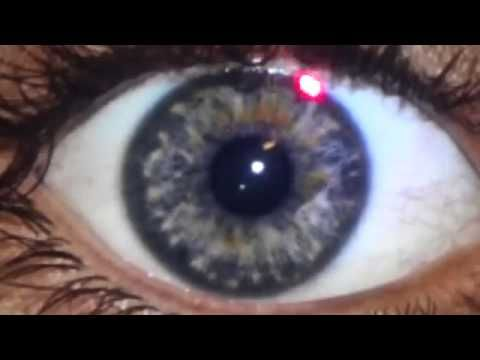 July 2015 - Dr. Morse's Eye Review Part 2 - YouTube