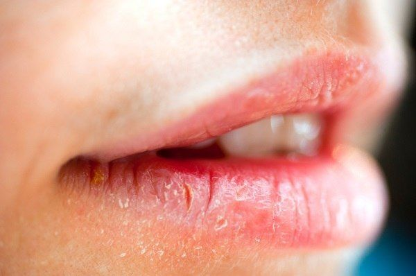 8 Warning Signs Your Lips Are Sending You Dry Lips Lip Allergy