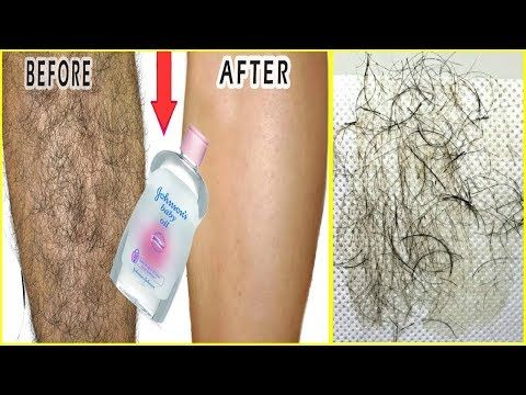In 5 Minutes Remove Unwanted Hair Permanently With Baby Oil | Amazing Baby Oil Beauty Hacks
