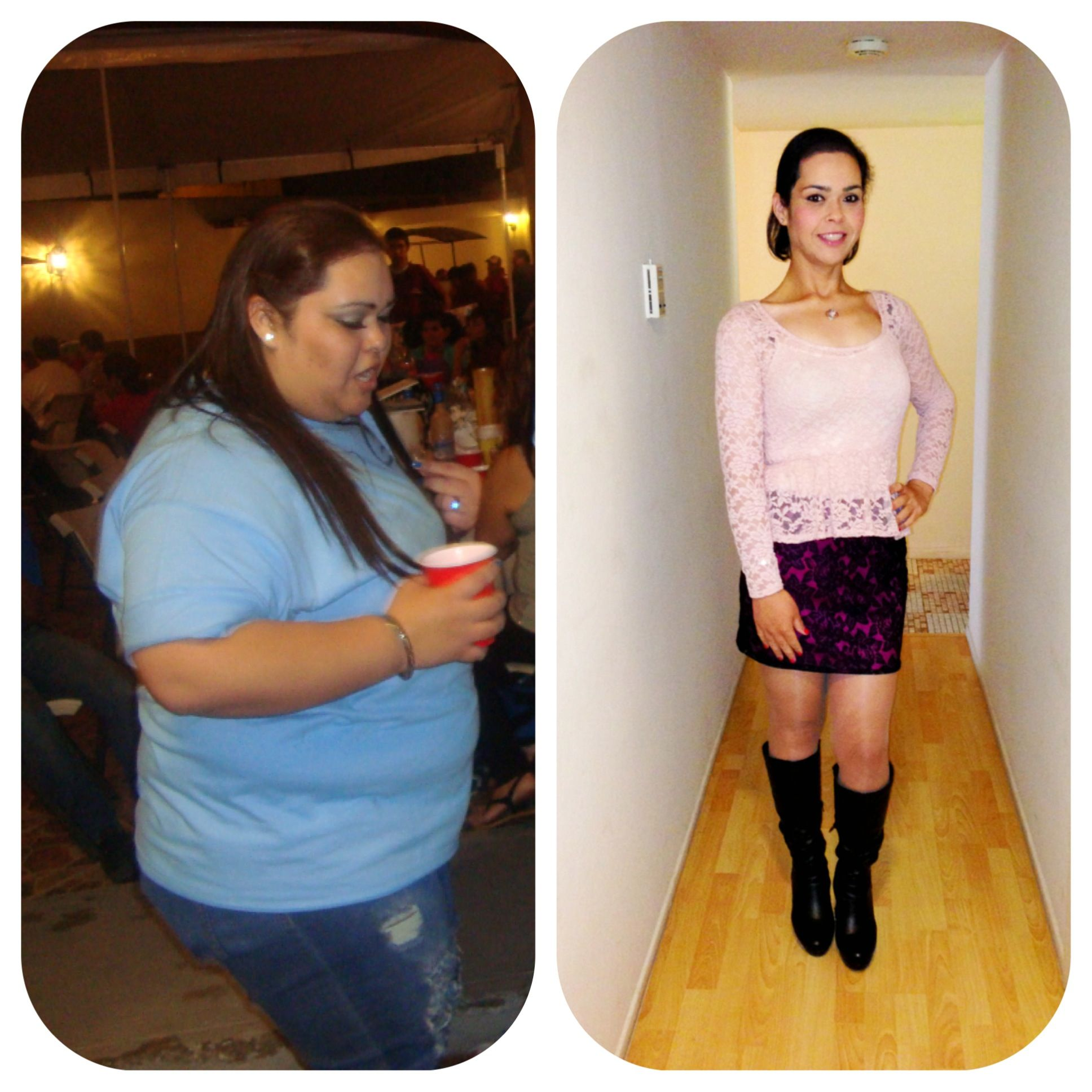Before And After Weight Loss Gastric Bypass Surgery I Weighed Over