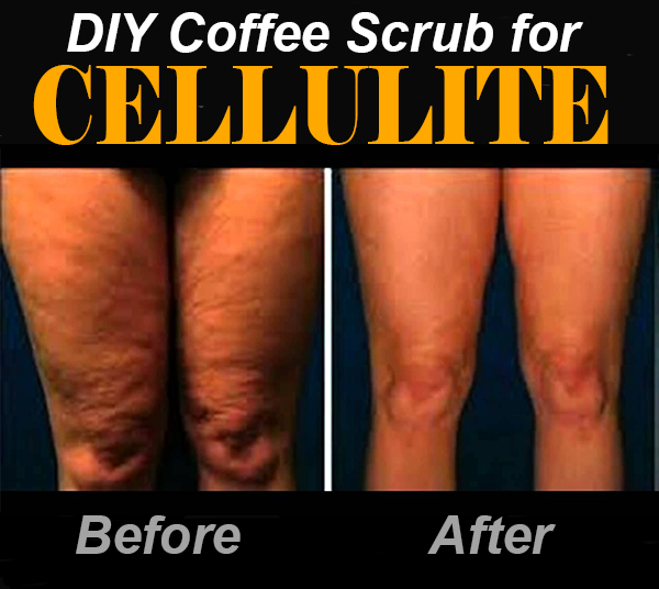Pin On Cellulite