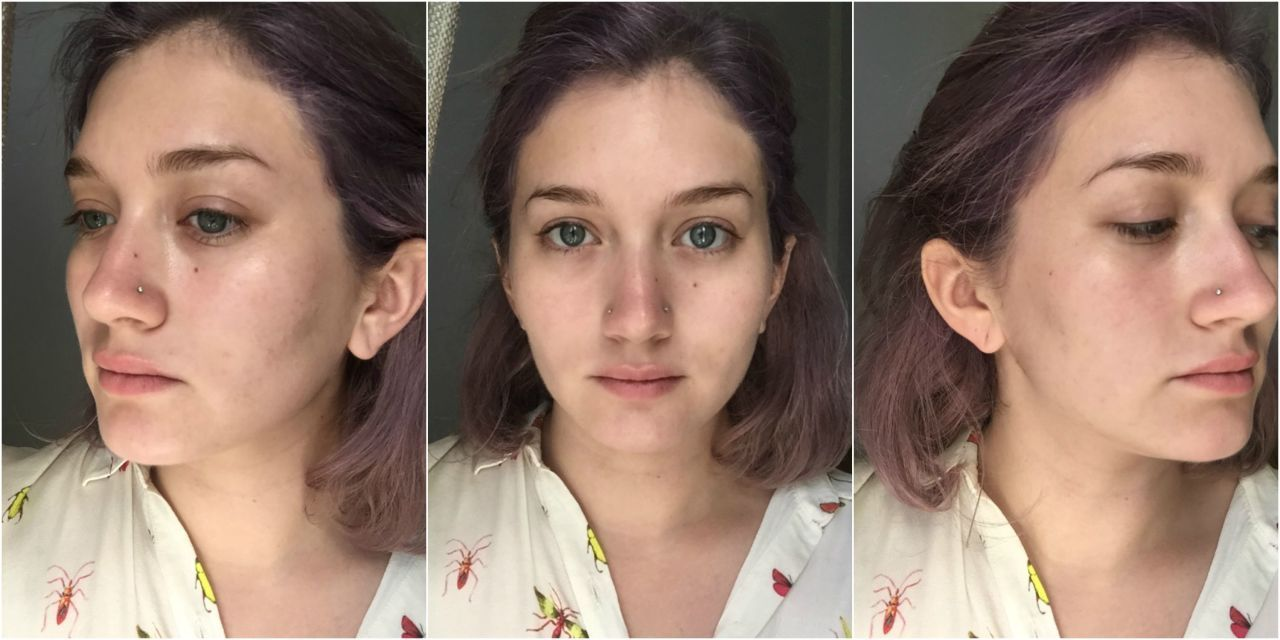 I Gave Up Popping My Pimples for a Week - Before and After Photos