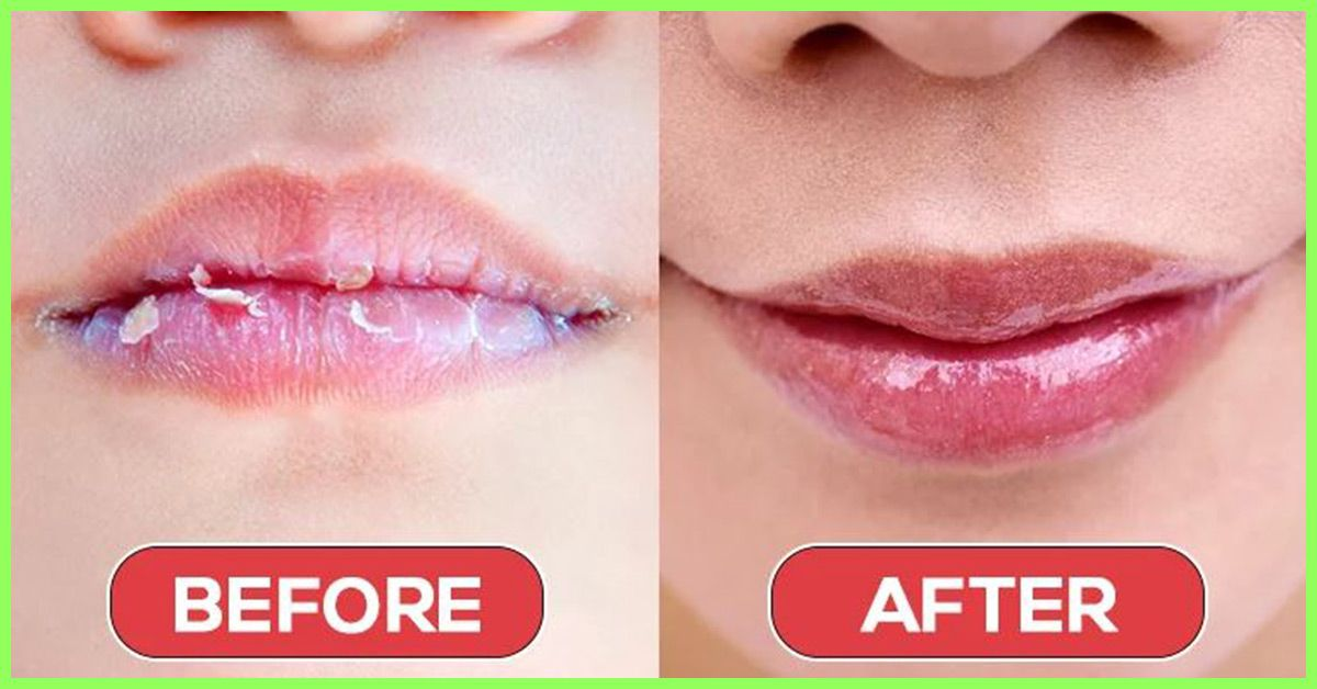 11 Home Remedies To Get Rid Of Chapped Lips Fast Dry Lips Dry