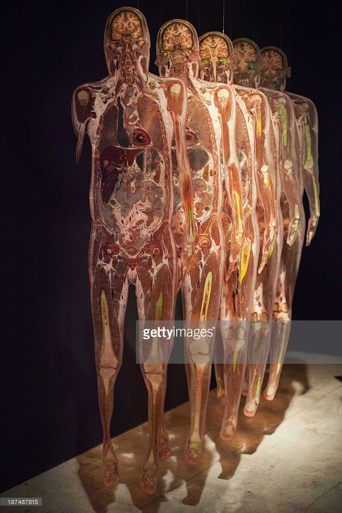 Science Body World Exhibition Rome | Body world\'s exhibit ...