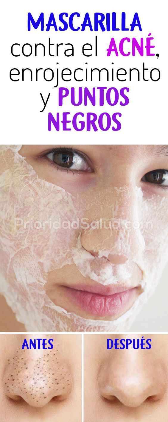 mascarilla casera para acne