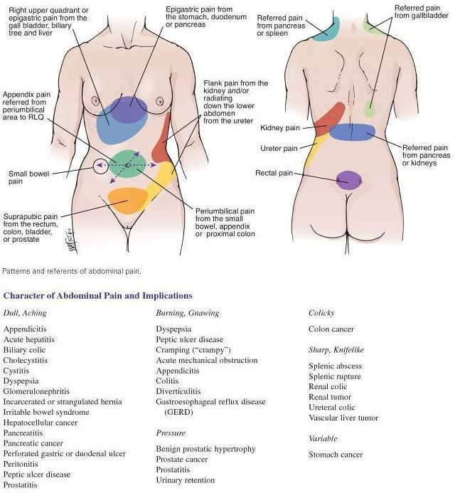 Abdominal Pain Differential Diagnosis Chart Google Search