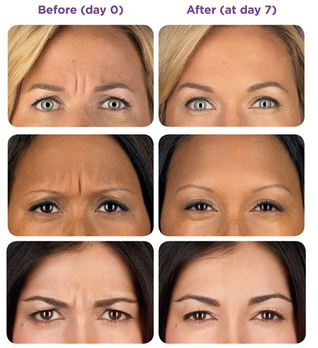 Botox Before and After MedSpa Services Pinterest Laser hair - plastic surgery consultant sample resume