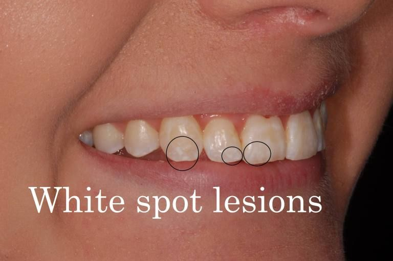 How To Get Rid Of White Spot Lesions On Teeth